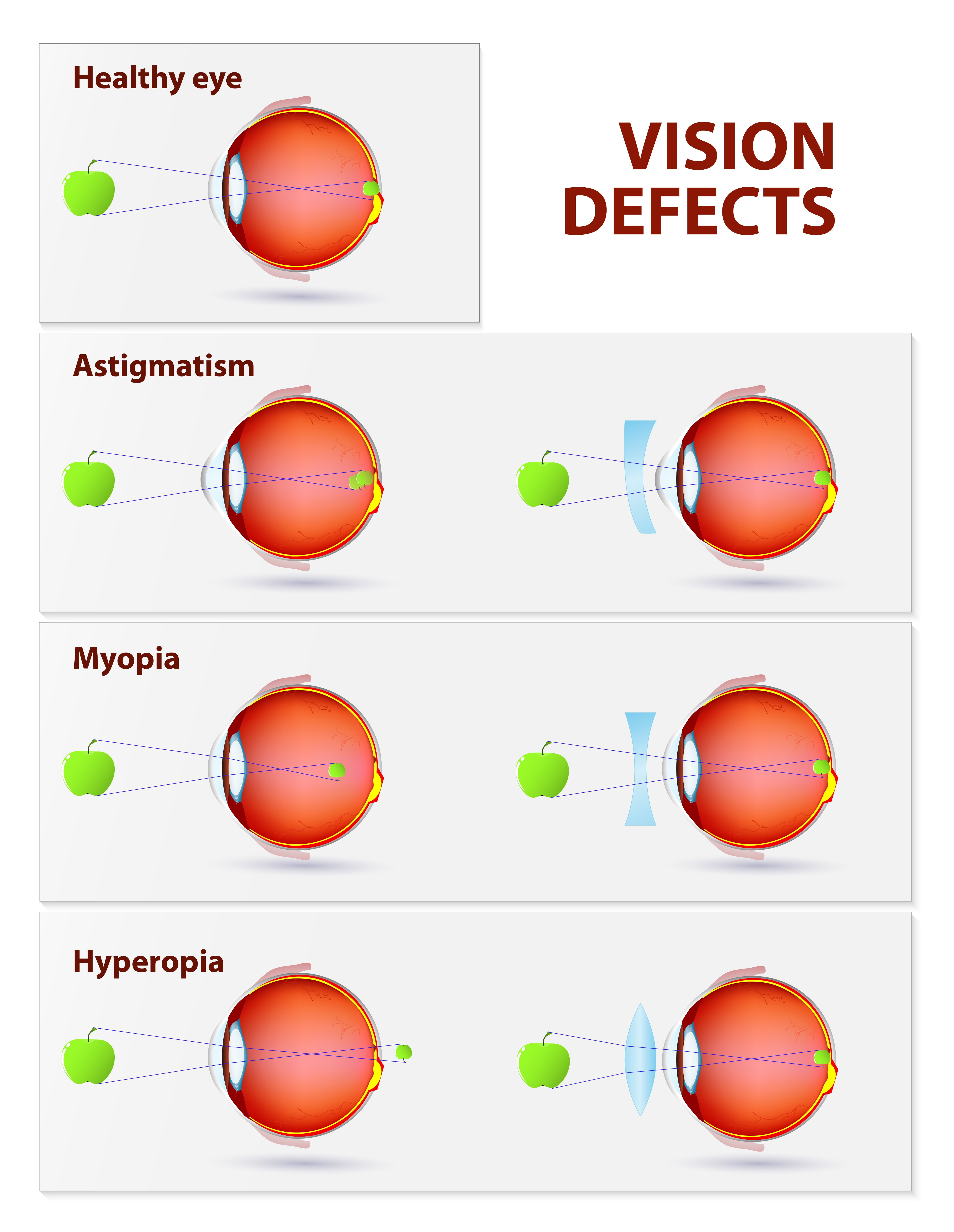 Refractive surgery corrects vision defects such as Astigmatism, Myopia and Hyperopia